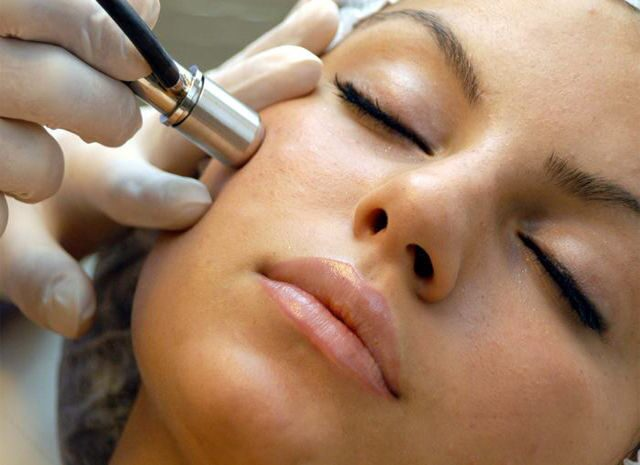 Microdermabrasion-Photo
